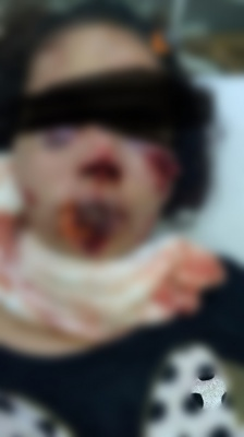 Homem arranca parte do lábio e nariz da esposa com mordida e acaba preso 2